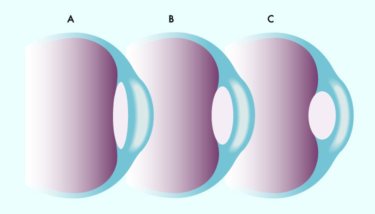 Schematische-Darstellung-der-Akkommodation -