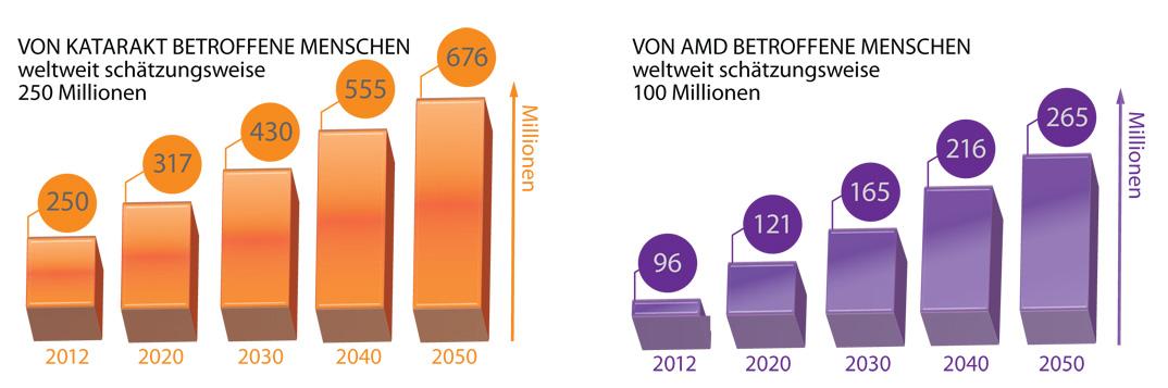 Katarakt - AMD